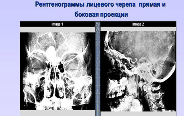 Рентген головы: что показывает, как делают, рентген при сотрясении у ребенка и взрослого