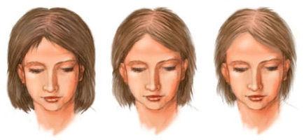 Обследования при гирсутизме у женщин и алопеции | ОкейДок