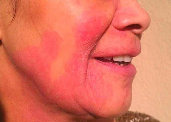 Как проявляется аллергия на алкоголь и отчего появляются красные пятна на лице