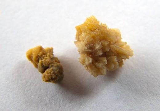 Оксалатные камни и песок в почках: причины образования, как вывести камни из почек