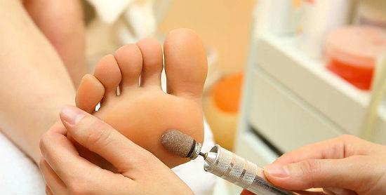 Гиперкератоз стоп: причины и симптомы гиперкератоза ног, методы лечения