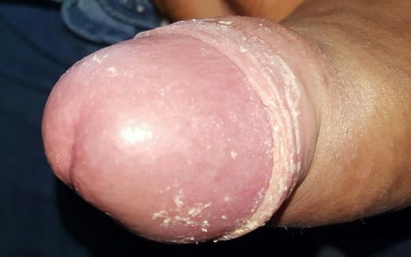 Белый налет на головке полового члена: почему появляется, как избавиться