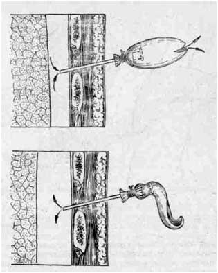 Плевральная пункция: показания, техника проведения при пневмотораксе и гидротораксе
