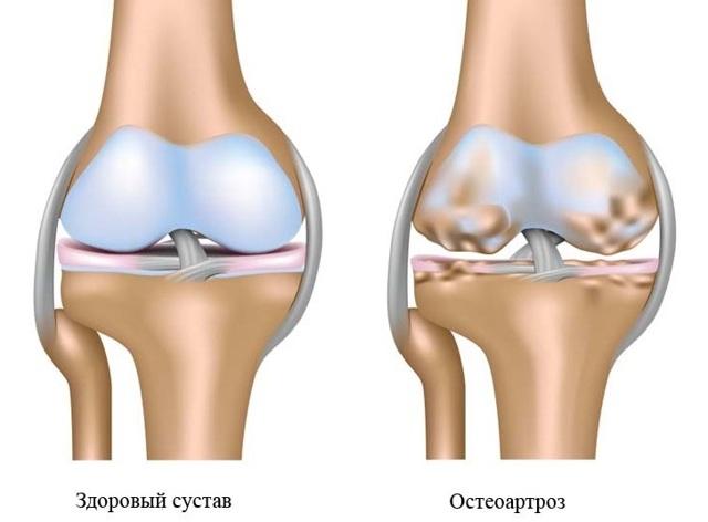 Остеоартроз что это такое: симптомы и лечение