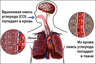 Отравление бытовым газом: симптомы, первая помощь при отравлении метаном, лечение при отравлении газом