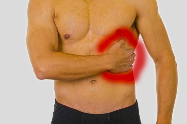 Перелом грудины: симптомы, лечение в домашних условиях, срок реабилитации