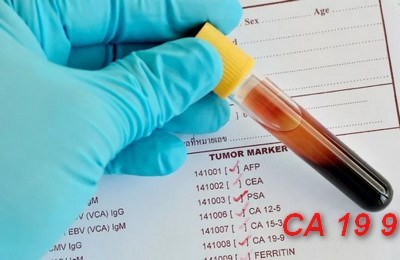 Онкомаркер СА 19-9: расшифровка анализа, что показывает онкомаркер СА 19-9, нормы и правила сдачи анализа