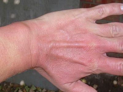 Почему на руках появилась мелкая сыпь красного цвета