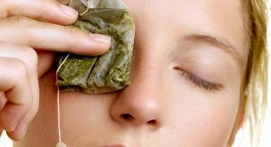 Как лечить халязион на верхнем веке у взрослого