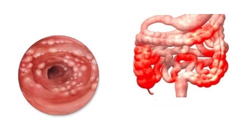 Что такое колит кишечника и терминальный илеит?