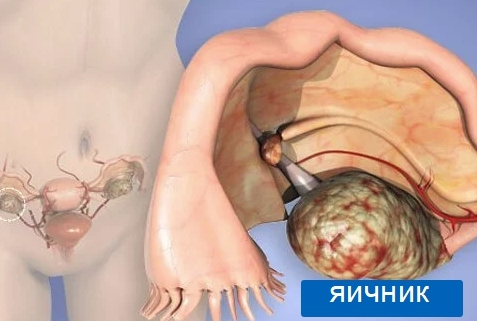 Фиброма яичника: причины, симптомы, диагностика и лечение