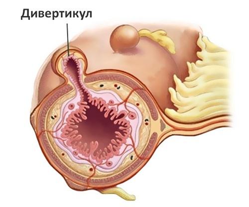 Дивертикул мочевого пузыря у детей: прогноз, лечение, операция у ребенка