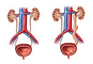 Уретероцеле мочевого пузыря: симптомы и лечение у женщин и детей