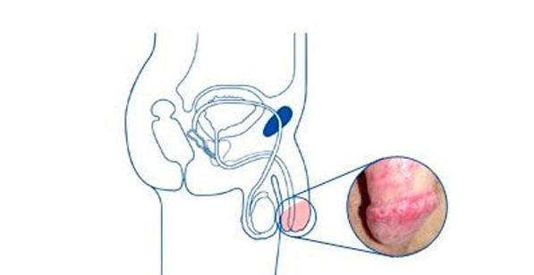 Молочница: симптомы и лечение, как выглядит у женщин и у мужчин, первые признаки