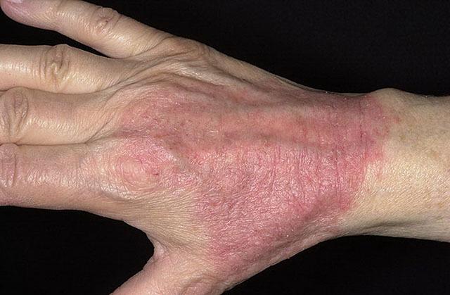 Дерматозы: симптомы, причины развития, виды дерматозов, медикаментозные методы лечения и народная медицина.