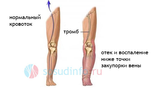 Посттромбофлебитическая болезнь вен нижних конечностей: симптомы, лечение