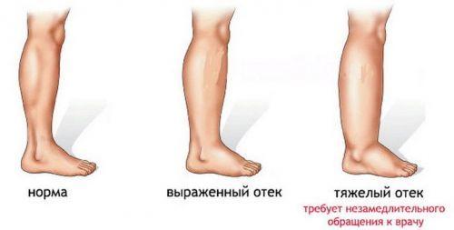 Болит стопа ноги ближе к пальцам, пятке, посередине при ходьбе: к какому врачу обращаться