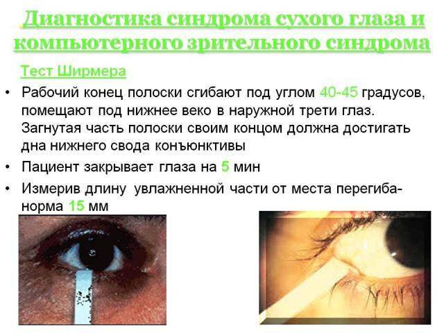 Синдром «сухого глаза»: симптомы и лечение, народные средства при синдроме сухого глаза