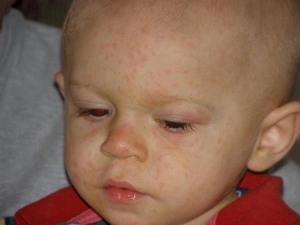 Почему у ребенка появились красные пятна на теле?