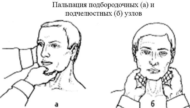 Причины увеличения, воспаления лимфоузлов на шее, под челюстью