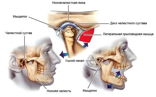 Анкилоз височно-нижнечелюстного сустава (ВНЧС): симптомы и лечение, профилактика