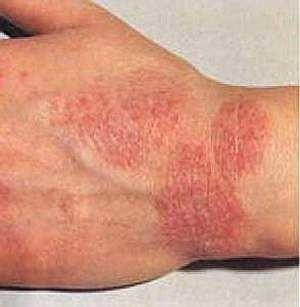 Почему появляется сыпь на ногах и руках?