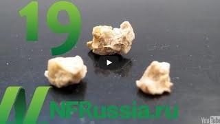 Диета при мочекаменной болезни почек: питание при камнях в почках, запрещенные продукты