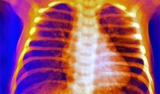 Синдром Титце: симптомы, лечение реберног охондрита, рентген признаки
