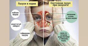 Процедура кукушка при гайморите: правила выполнения в поликлинике и в домашних условиях