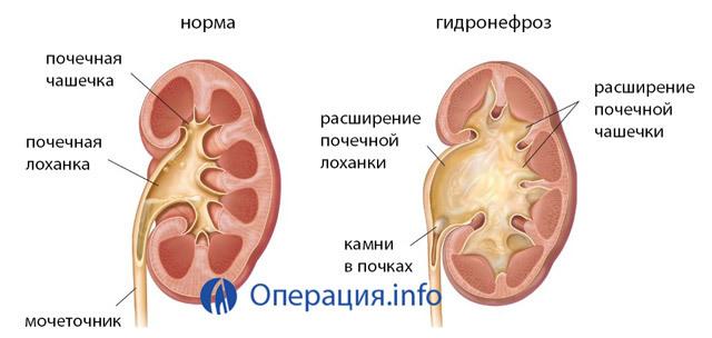 Гидронефроз почек: что это такое, исход заболевания, операция