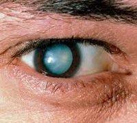 Катаракта: симптомы, диагностика, лечение и профилактика | ОкейДок