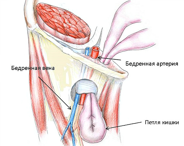 Бедренная грыжа: причины, симптомы, лечение, ущемленная бедренная грыжа