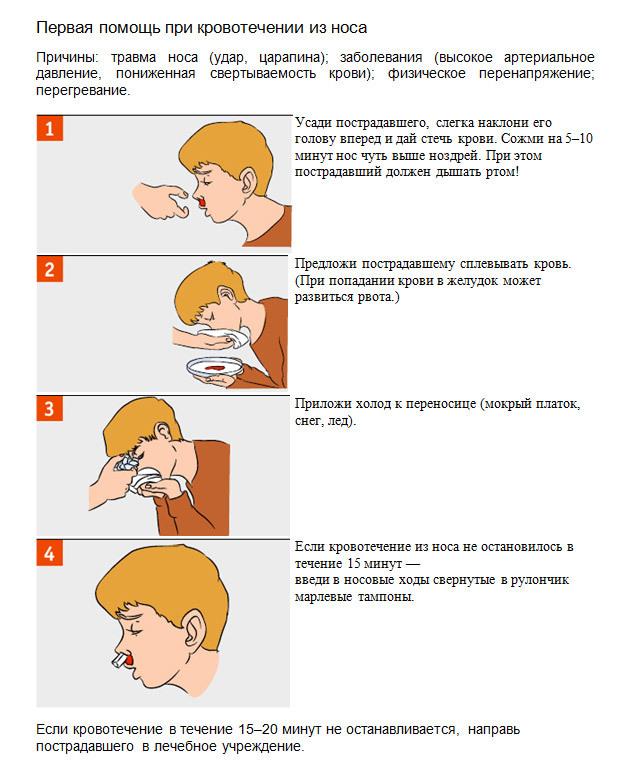 Носовое кровотечение у детей и взрослых: причины частых носовых кровотечений, первая помощь при носовом кровотечении и методы остановки кровотечения из носа
