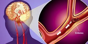 Микроинсульт: признаки, причины, диагностика, лечение, неотложная помощь при микроинсульте, реабилитация после микроинсульта
