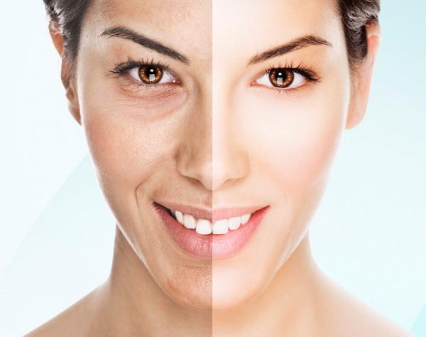Фотостарение кожи: что это такое, лечение в домашних условиях