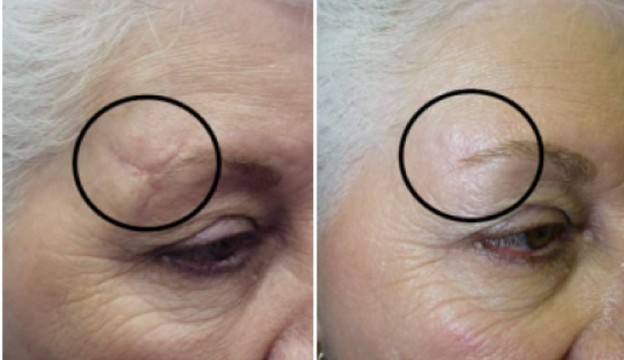 Лазерная шлифовка рубцов на лице и теле: противопоказания, фото до и после