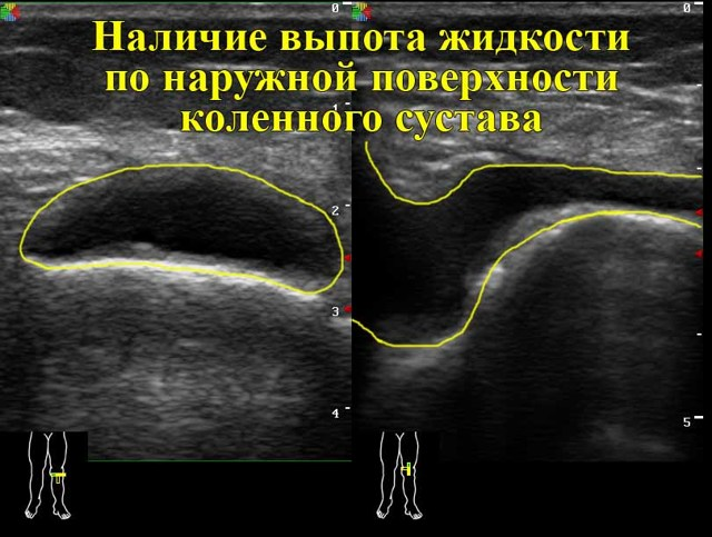 УЗИ коленных суставов: что показывает методика исследования?