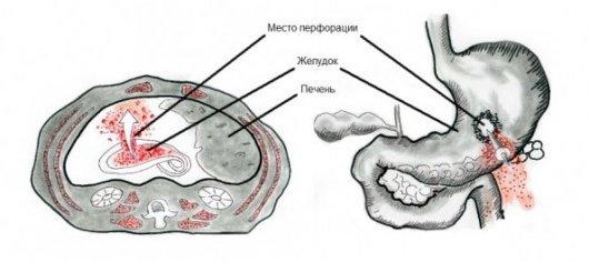 Перфорация желудка: симптомы, лечение, последствия и прогнозы