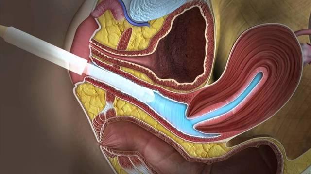 Ультразвуковое исследование: показания к диагностическому исследованию, виды УЗИ-диагностики различных органов, особенности 3d и 4d УЗИ.