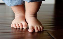 Искривление голеней у женщин, грудничков, новорожденных: причины, коррекция