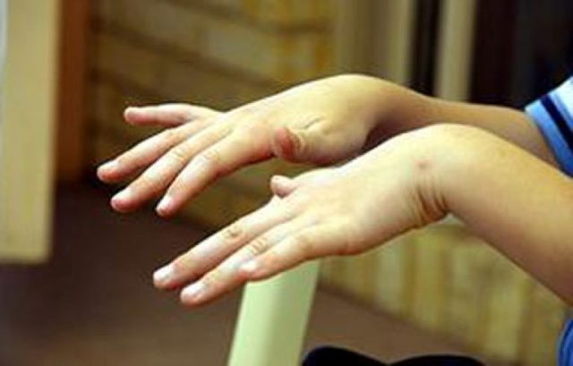 Препараты против тремора рук