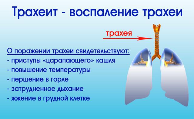 Болит горло в области трахеи, как вылечить?
