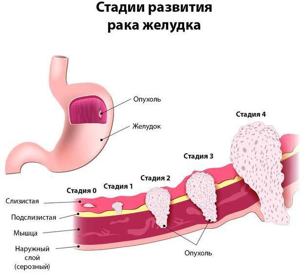 Анализ крови на онкомаркер ca 72-4 — что показывает, нормы и расшифровка, причины повышения