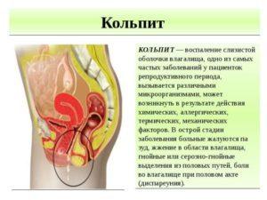 Кольпит — причины возникновения, виды, симптомы, осложнения, диагностика, лечение