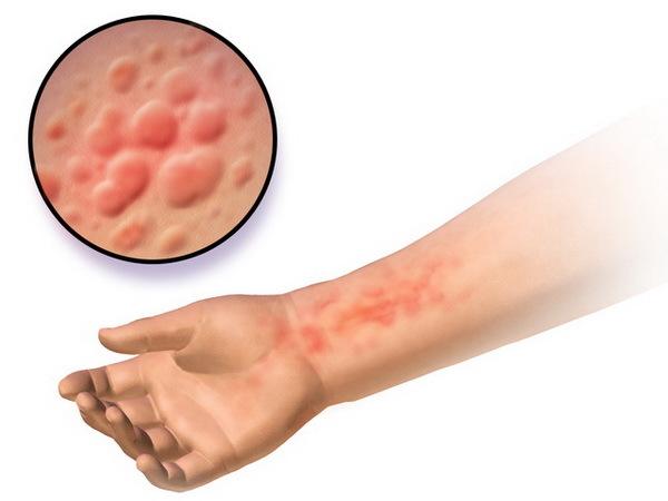 Контактный дерматит: симптомы и лечение, причины контактного дерматита, средства, эффективные при дерматите
