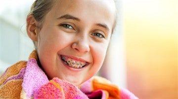 Дистальный прикус: фото, лечение, исправление у взрослых и детей, брекеты