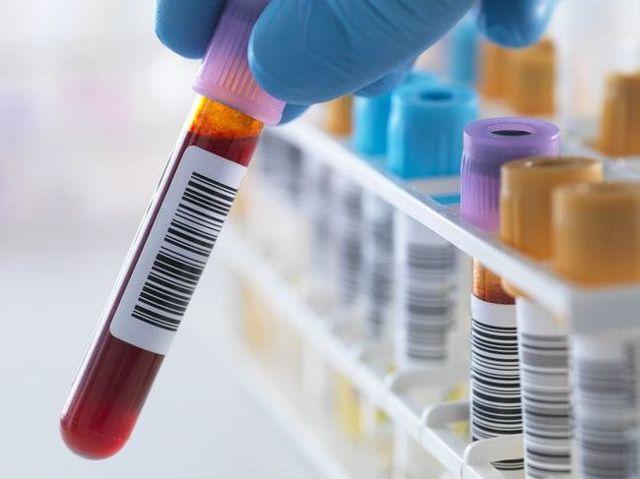O que significa a contagem elevada de linfócitos?  Okay dock