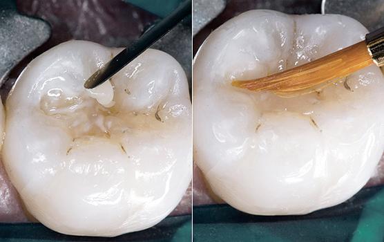 Какие пломбы лучше ставить на жевательные и передние зубы: сравнение пластмассовых и светоотверждаемых пдломб