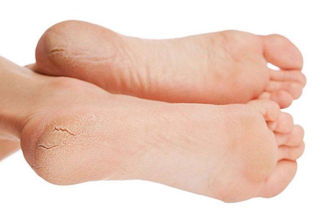 Лечение трещин на пятках: причины и лечение трещин на пятках в домашних условиях