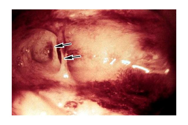 Синдром Ашермана: симптомы, лечение, возможна ли беременность при синдроме Ашермана